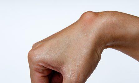Cisti tendinea - cisti sinoviale - al polso, alla mano, al piede